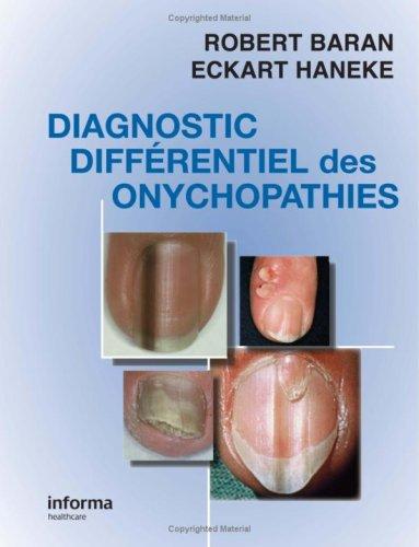 Diagnostic différentiel des onychopathies par Robert Baran