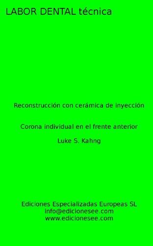 Reconstrucción con cerámica de inyección: Corona individual en el frente anterior (Labor Dental Técnica) por Luke S.  Kahng