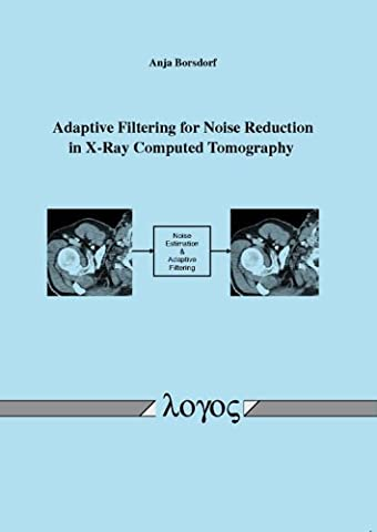 Adaptive Filtering for Noise Reduction in X-ray