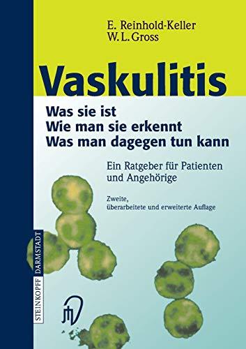 Vaskulitis: Was ist sie - Wie man sie erkennt - Was man dagegen tun kann -