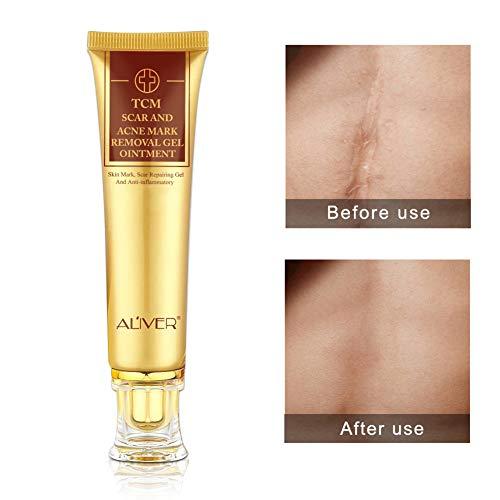 Akne Narbe entfernen creme, Narbencreme, Gel Narben Dehnungsstreifen Behandlung für Gesicht und Körper Skin Repair Cream Narbe Creme Behandlung Haut Reparatur