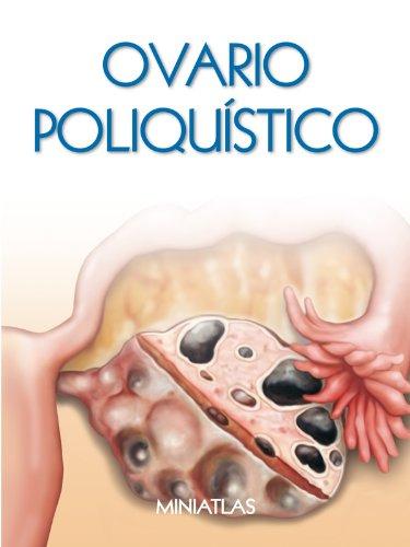 Síndrome de Ovario Poliquístico (SOP) - Miniatlas por Dr. Luis Raúl Lépori