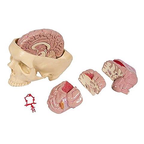 Anatomie Modell Gehirnerkrankungen, Schädelbasis mit Gehirn, 6-teilig