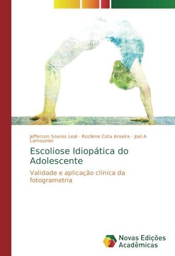 Escoliose Idiopática do Adolescente: Validade e aplicação clínica da fotogrametria