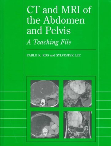 CT and MRI of the Abdomen and Pelvis: A Teaching File (Radiology Teaching File Series) by Pablo R. Ros (1997-08-01)