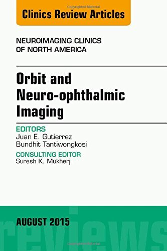 Orbit and Neuro-ophthalmic Imaging, An Issue of Neuroimaging Clinics, 1e (The Clinics: Radiology) by Juan E. Gutierrez MD (2015-08-17)