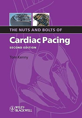 Nuts Bolts Cardiac Pacing 2e (Nuts and Bolts Series)