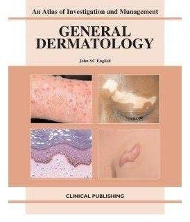 [(General Dermatology)] [By (author) J. S. C. English] published on (March, 2007)
