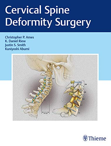 Cervical Spine Deformity Surgery (English Edition)