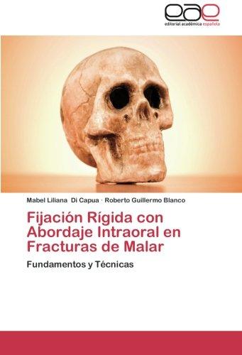 Fijacion Rigida Con Abordaje Intraoral En Fracturas de Malar por Di Capua Mabel Liliana