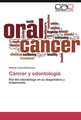 Cáncer y odontología: Rol del odontólogo en su diagnóstico y tratamiento por Damián Lanza Echeveste
