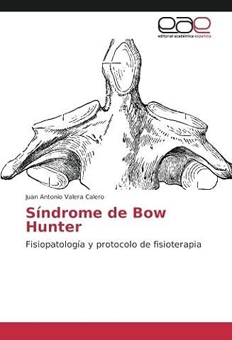 Síndrome de Bow Hunter: Fisiopatología y protocolo de fisioterapia