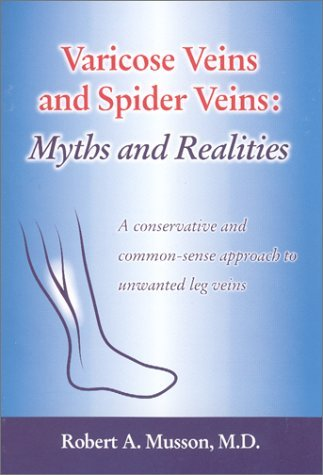 Varicose Veins and Spider Veins: Myths and Realities by Robert A., M.D. Musson (2001-05-30)