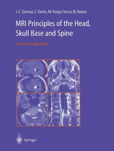 Mri Principles of the Head, Skull Base and Spine: A Clinical Approach