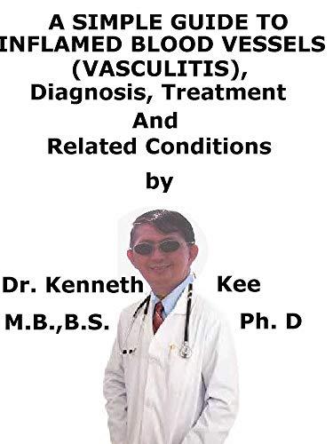 Alivio de las venas varicosas vulvar