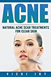 Acne: Natural Acne Scar Treatments for Clear Skin
