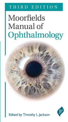Moorfields Manual of Ophthalmology