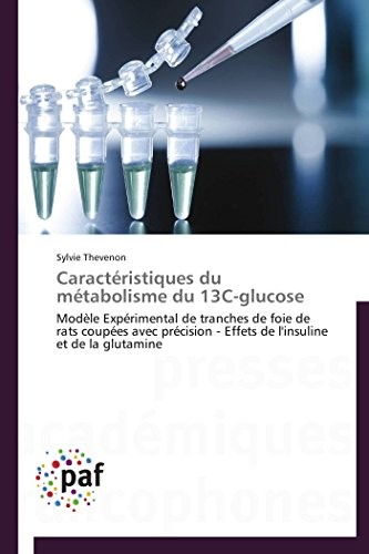 Caractéristiques du métabolisme du 13c-glucose par Sylvie Thevenon