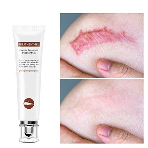 Mimiga Narbe Gel Creme Akne Narbe entfernen Creme Für Gesicht und Körper zur Entfernung von Alten und frischen Narben - Aufhellung Feuchtigkeit Behandlung