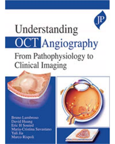 Understanding OCT Angiography from Pathophysiology to Clinical Imaging