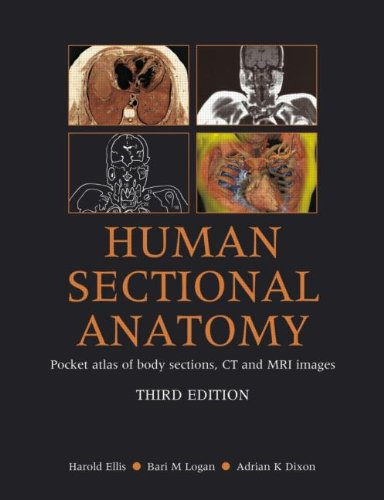 human-sectional-anatomy-pocket-atlas-of-body-sections-ct-and-mri-images-third-edition
