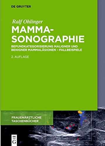 Mammasonographie: Befundkategorisierung maligner und benigner Mammaläsionen – Fallbeispiele (Frauenärztliche Taschenbücher)