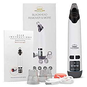 Blackhead Remover Vacuum skin Care Tool Set - Acne Comedone Whitehead Extractor Spot Removal Microdermabrasion Pore Cleaner Kit Beauty Facial Exfoliator Treatment Makeup Cleanser Face Massager