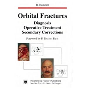 Orbital Fractures: Diagnosis, Operative Treatment, Secondary Corrections