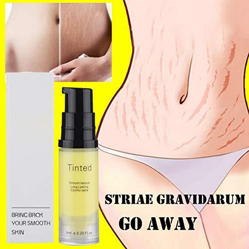 Allbesta Stretch Marks Cream Narbencreme Dehnungsstreifen Entfernung für Frauen Körper Feuchtigkeitspflege Dehnungsstreifen Schwangerschaft Reparatur