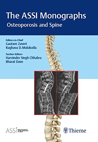 The ASSI Monographs - Osteoporosis and Spine