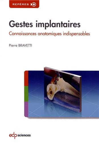Gestes implantaires : Connaissances anatomiques indispensables