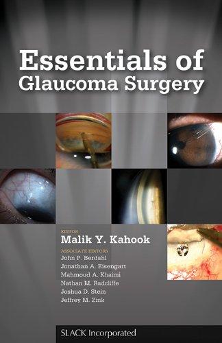 Essentials of Glaucoma Surgery