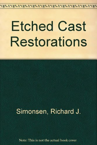 Etched Cast Restorations: Clinical and Laboratory Techniques by Richard Simonsen (1982-12-03)