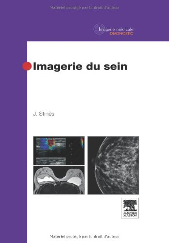 Descargar Libro Imagerie du sein de Joseph Stinès