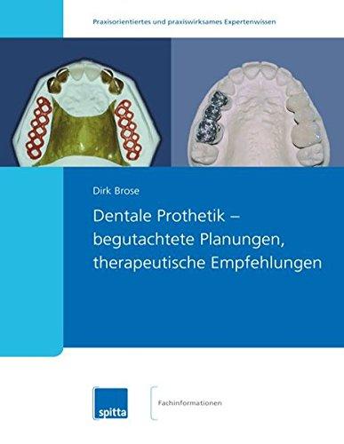 Dentale Prothetik - begutachtete Planungen, therapeutische Empfehlungen (Dental-bücher)