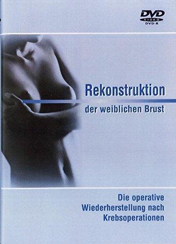 Rekonstruktion der weiblichen Brust: Die operative Wiederherstellung nach Krebsoperationen