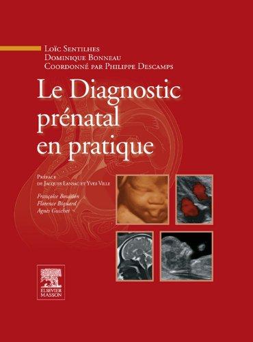Le Diagnostic prnatal en pratique