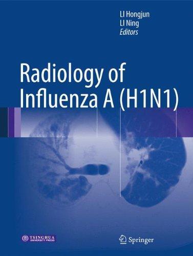 Radiology of Influenza A (H1N1) (2013-03-23)