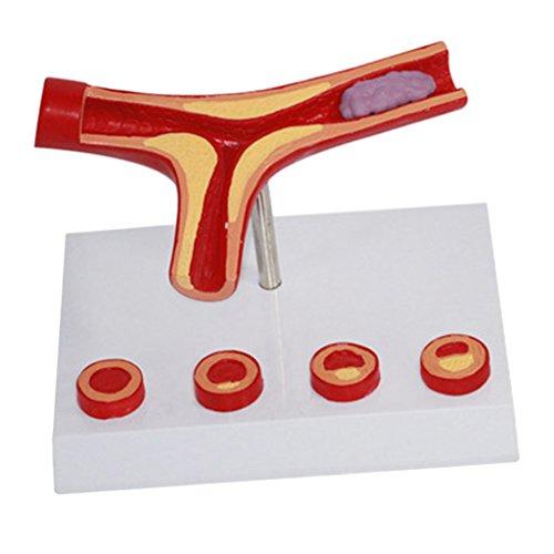 Sockel Training (MagiDeal Anatomisches Modell Atherosklerose-Modell für Humanes Gefäß Anatomisches Modell Für Medizinisches Training -16.5cm x 13cm)