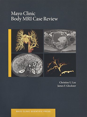 mayo-clinic-body-mri-case-review