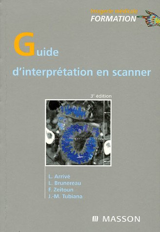 Guide d'interprétation en scanner