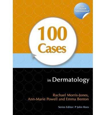 [(100 Cases in Dermatology)] [Author: Rachael Morris-Jones] published on (November, 2011)