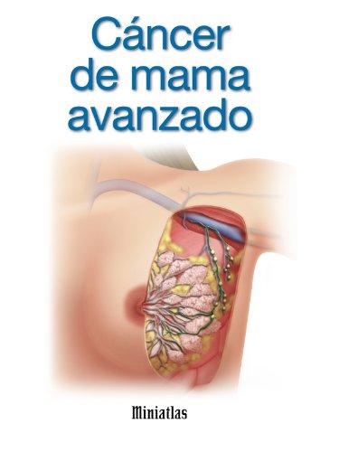 Miniatlas Cáncer de mama avanzado por Luis Raúl Lépori