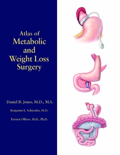 Atlas of Metabolic and Weight Loss Surgery by Daniel B. Jones (2010-04-26)