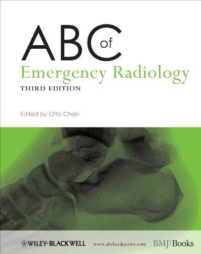 ABC of Emergency Radiology (ABC Series)