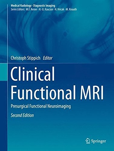Clinical Functional MRI: Presurgical Functional Neuroimaging (Medical Radiology) (2015-03-09)