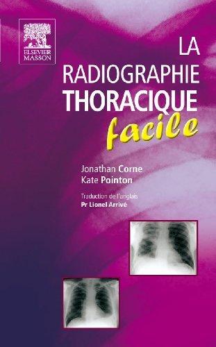 La radiographie thoracique facile de Jonathan Corne (20 octobre 2010) Poche