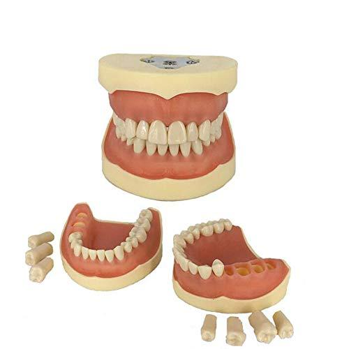 Sunshine Zahnmodell, Keine Schraube, Modell zur Vorbereitung auf die Zahnarztpraxis, alle abnehmbaren Mundmodellunterricht für zahnärztliche Materialien, Ausbildung.