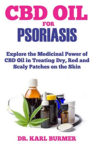 Psoriasis Relief (CBD OIL FOR PSORIASIS: Explore the Medicinal Power of CBD Oil in Treating Dry, Red and Scaly Patches on the Skin)