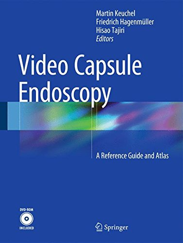 Video Capsule Endoscopy: A Reference Guide and Atlas